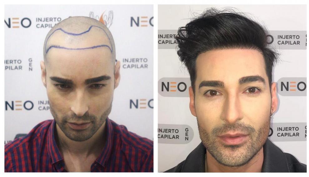 Miguel Vilas, antes y después de realizarse el injerto capilar.