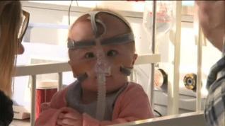 El primer bebé en Reino Unido que sobrevive después de nacer con el corazón fuera del pecho