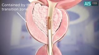 Simulación de una operación de reducción de próstata con vapor