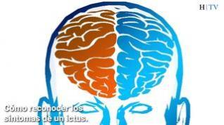 Cómo reconocer los síntomas de un ictus