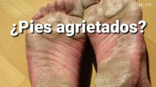 Acaba con los pies agrietados en verano con estos simples consejos