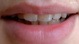 Consejos naturales para la higiene bucal