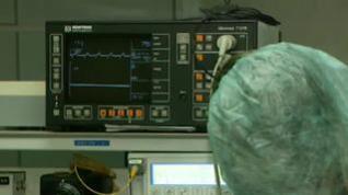 ¿Cómo es la recuperación de los pacientes con bypass?