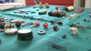 Botones, cuchillas, pilas o dados encontrados en estómagos