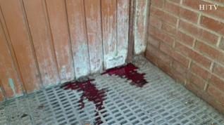 Un hombre aparece muerto en la calle Sierra Purroy y su pareja, herida de arma blanca