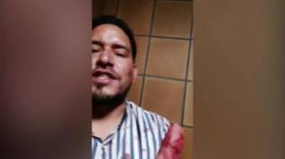 Declaraciones de uno de los detenidos en la discusión de la calle Santiago Lapuente