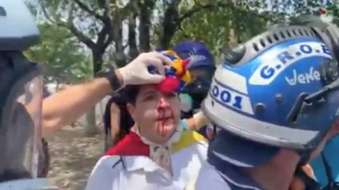 Un hombre herido en los disturbios de Venezuela.