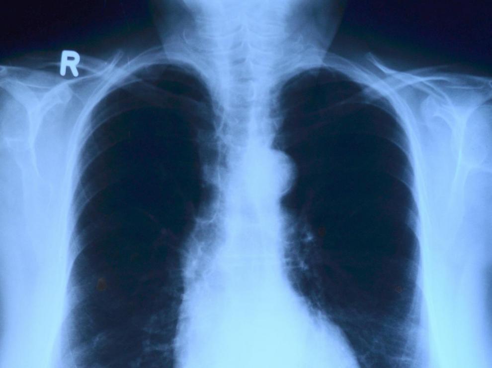 Radiografía de torax.