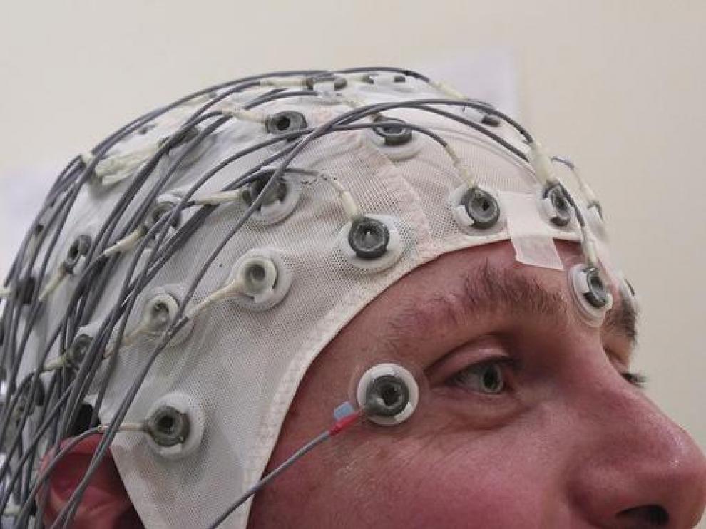 Electroencefalografía.