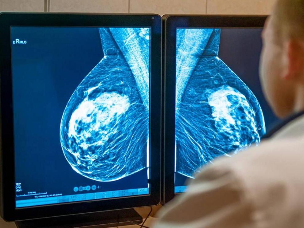 Los resultados del nuevo estudio cambian la práctica clínica en el cáncer de mama más frecuente y evitará la quimioterapia a miles de pacientes.