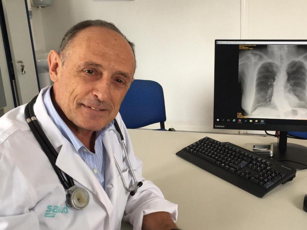 El neumólogo aragonés José María Marín, en el Hospital Miguel Servet de Zaragoza.