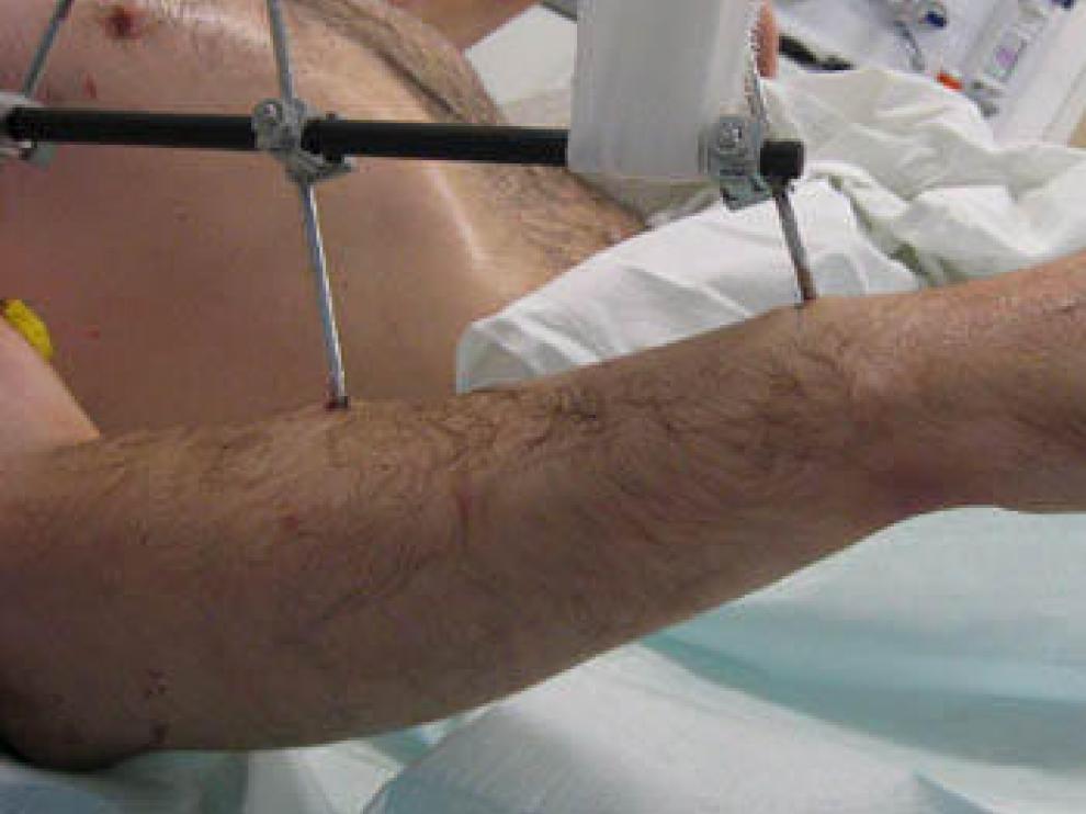 España bate su récord en donación y trasplante de órganos