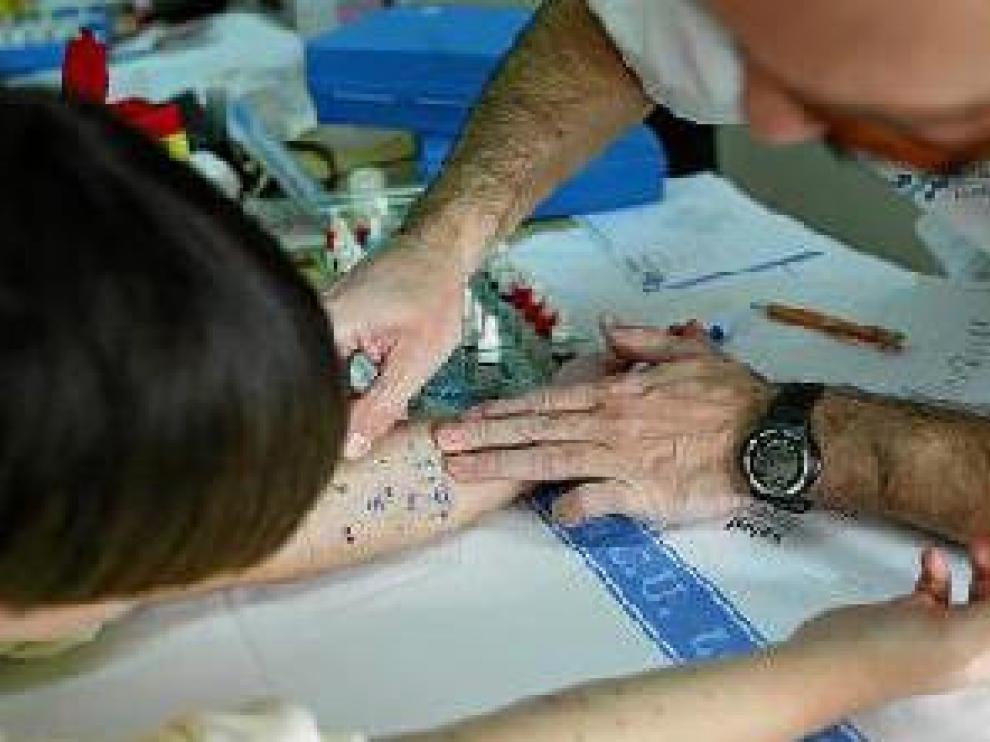 Las pruebas cutáneas son decisivas en el diagnóstico.