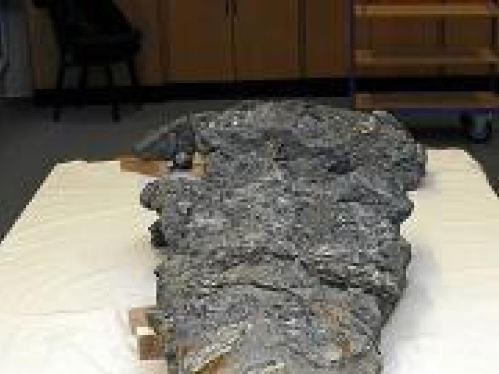 Parte superior del cráneo.
