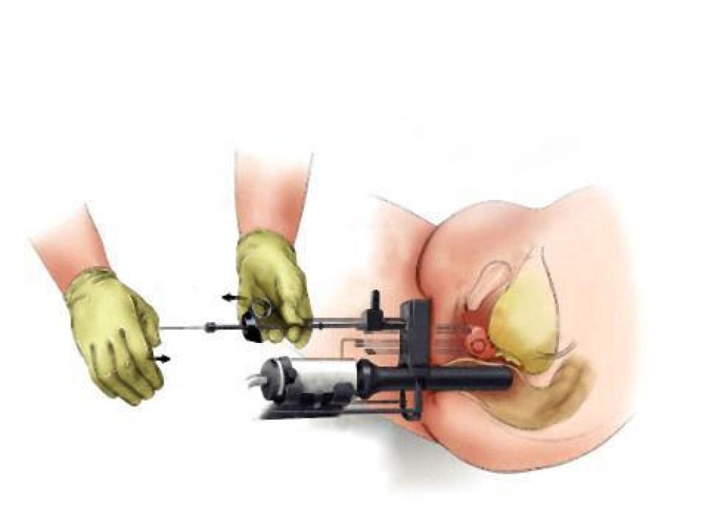 12 primeros sintomas de cancer de prostata