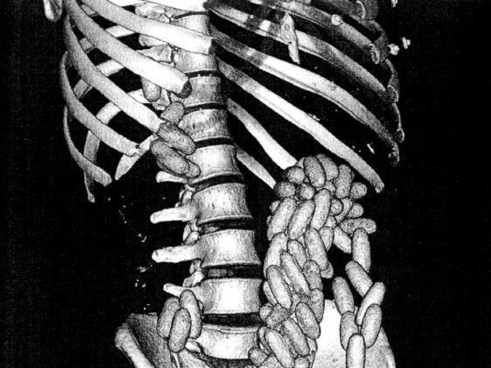 Radiografía de M. E.