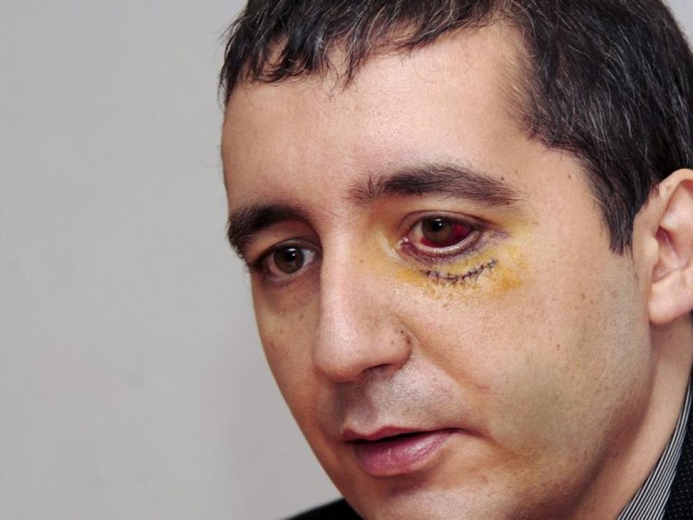 Pedro Alberto Cruz todavía tiene signos visibles de la paliza