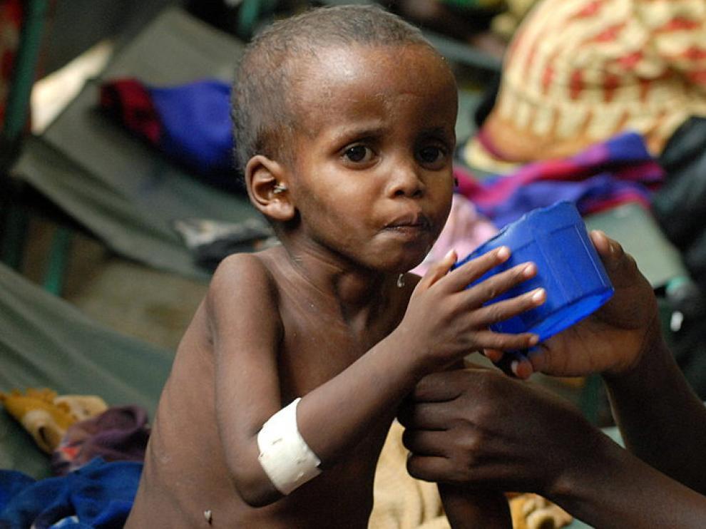 Un niño es atendido por sus problemas de salud en Somalia
