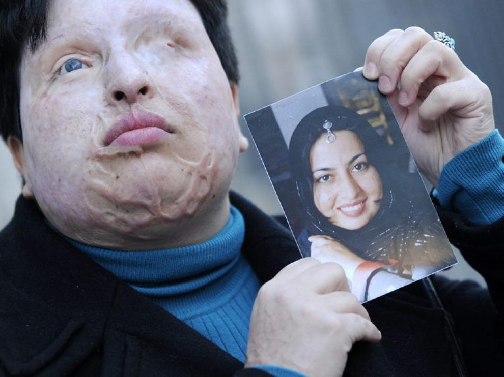 Bahrami posa con una foto de cómo era antes de que le arrojaran ácido