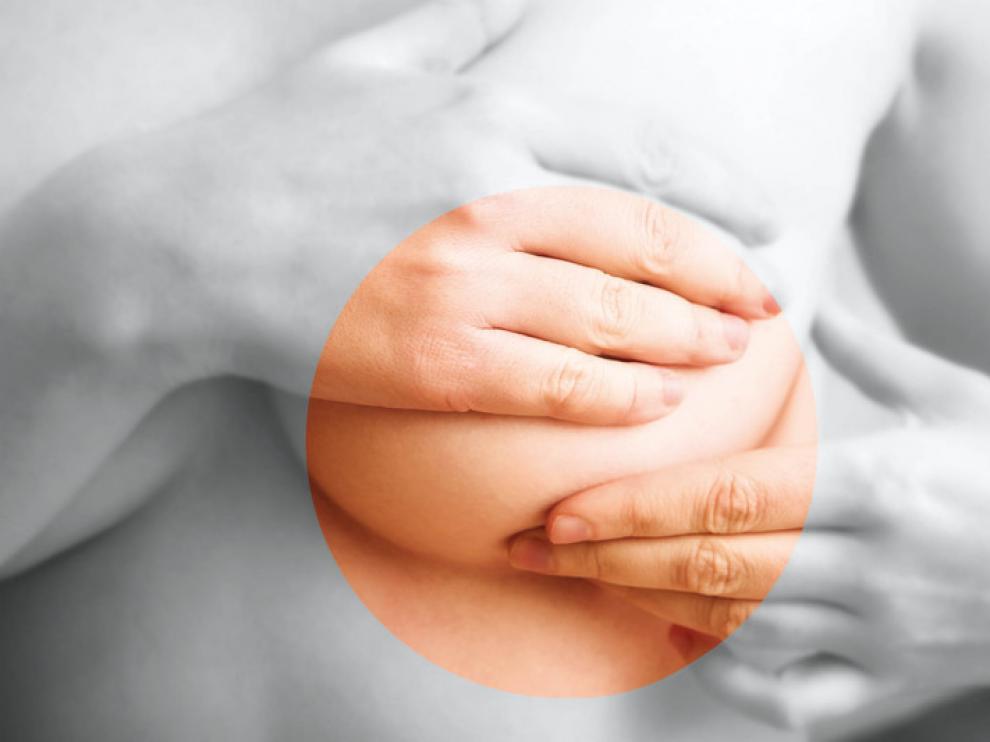 Notar cantos duros en el pecho es uno de los síntomas del cáncer de mama.