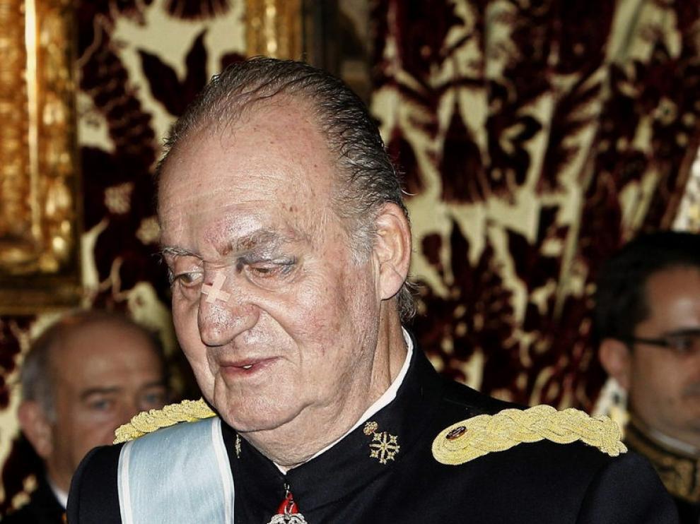 El Rey Juan Carlos con un hematoma en el ojo