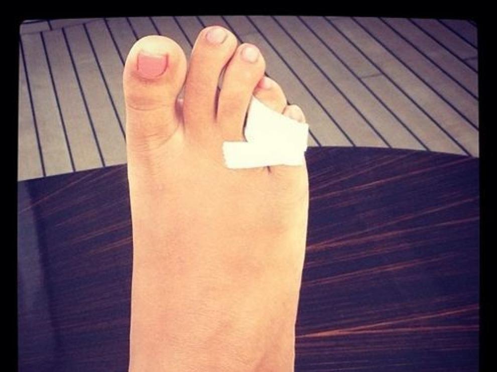 Rihanna se ha roto un dedo en sus vacaciones en la Costa Azul francesa