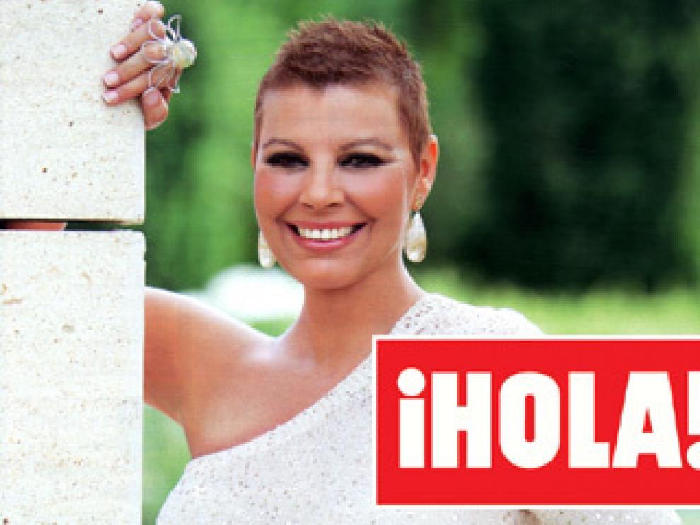 Terelu Campos se muestra sin peluca