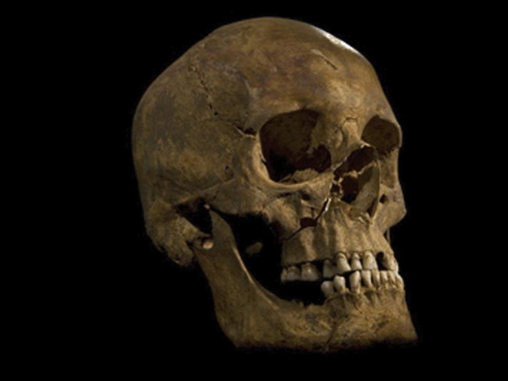 Cráneo del esqueleto hallado en la iglesia de Grey Friars