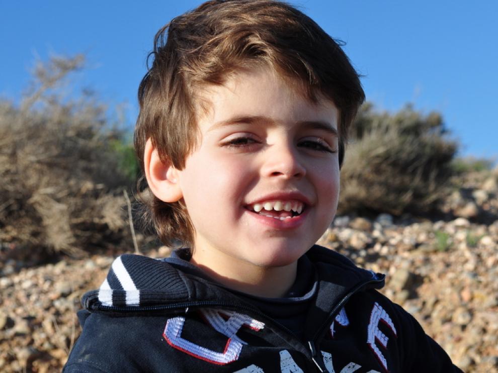 Samuel sufre el raro síndrome de Dravet