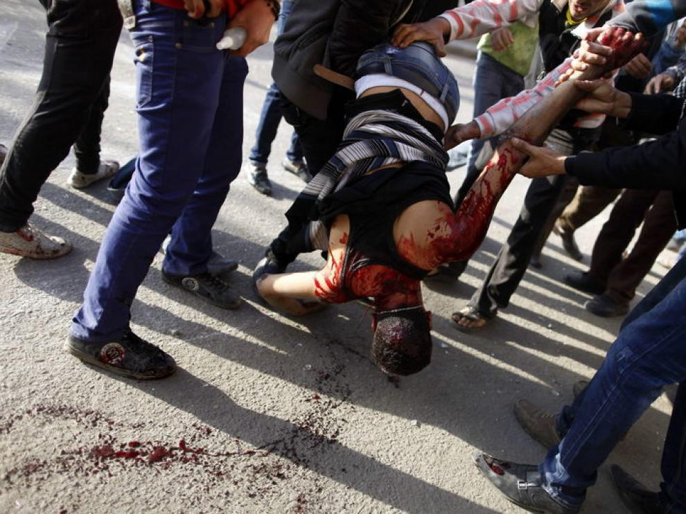Uno de los heridos en El Cairo es trasladado