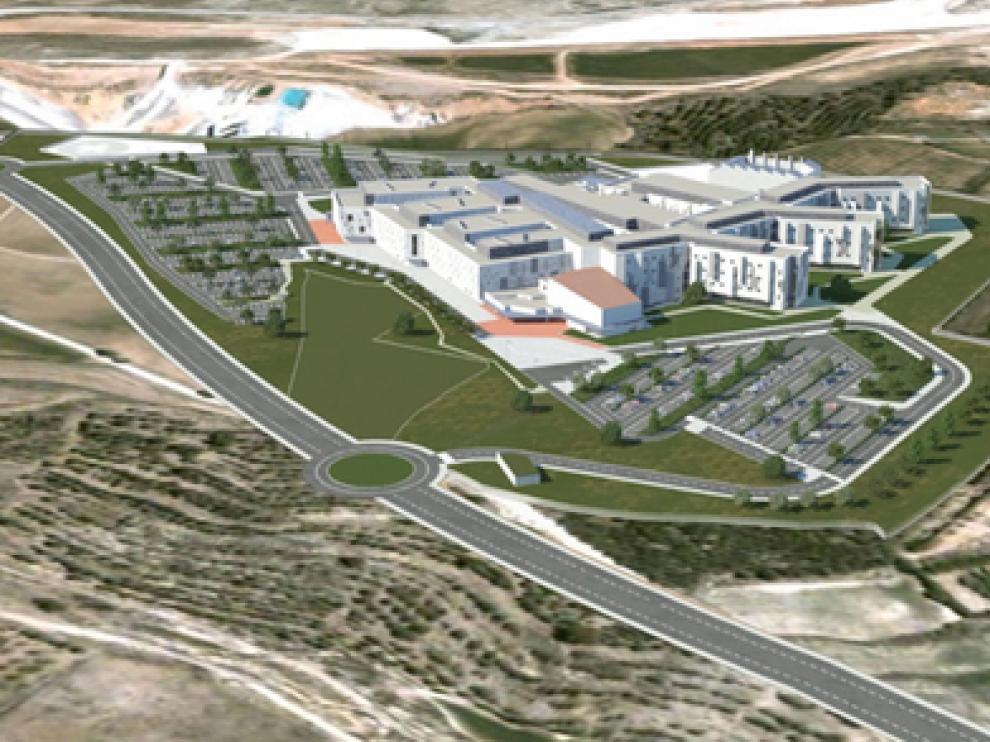Recreación del proyecto de Hospital en El Planizar