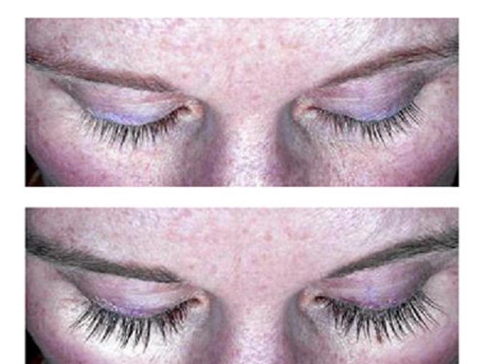 Antes y después del botox