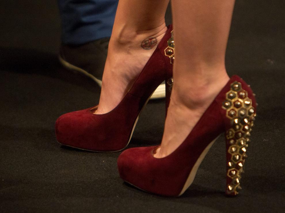 La cirugía 'Cenicienta' consiste en modificar el pie para adaptarlo a zapatos con tacones de hasta 18 centímetros