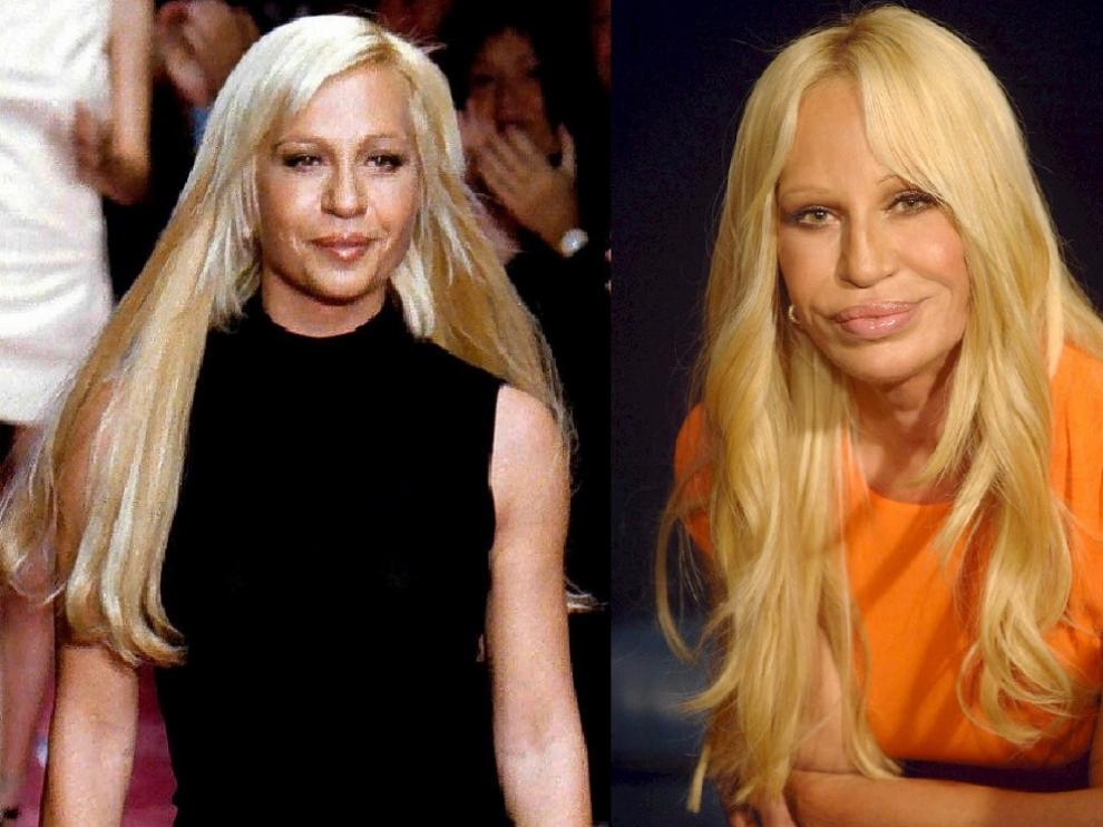 La diseñadora Donatella Versace se ha sometido a numerosas intervenciones
