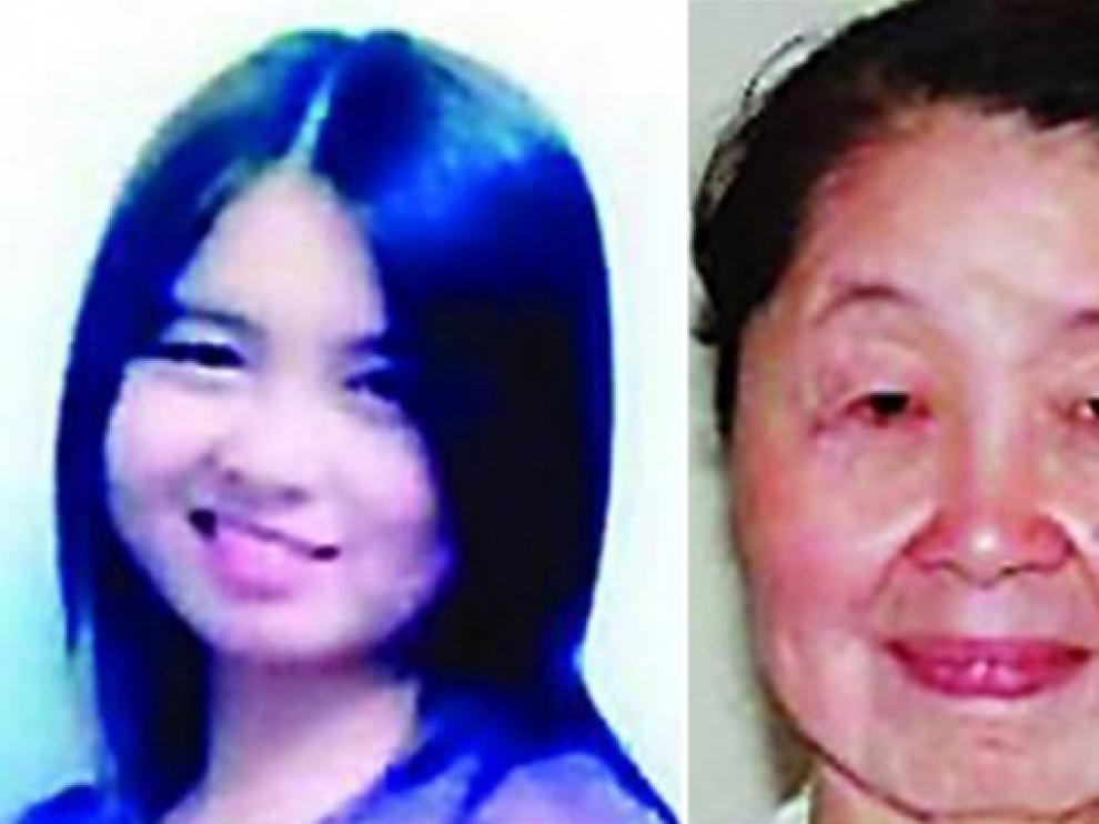 Hu Juan, de 28 años, antes y después de comenzar a sufrir su enfermedad