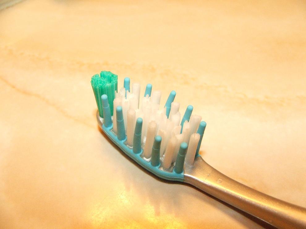 La periodontitis puede prevenirse con una correcta higiene bucodental.