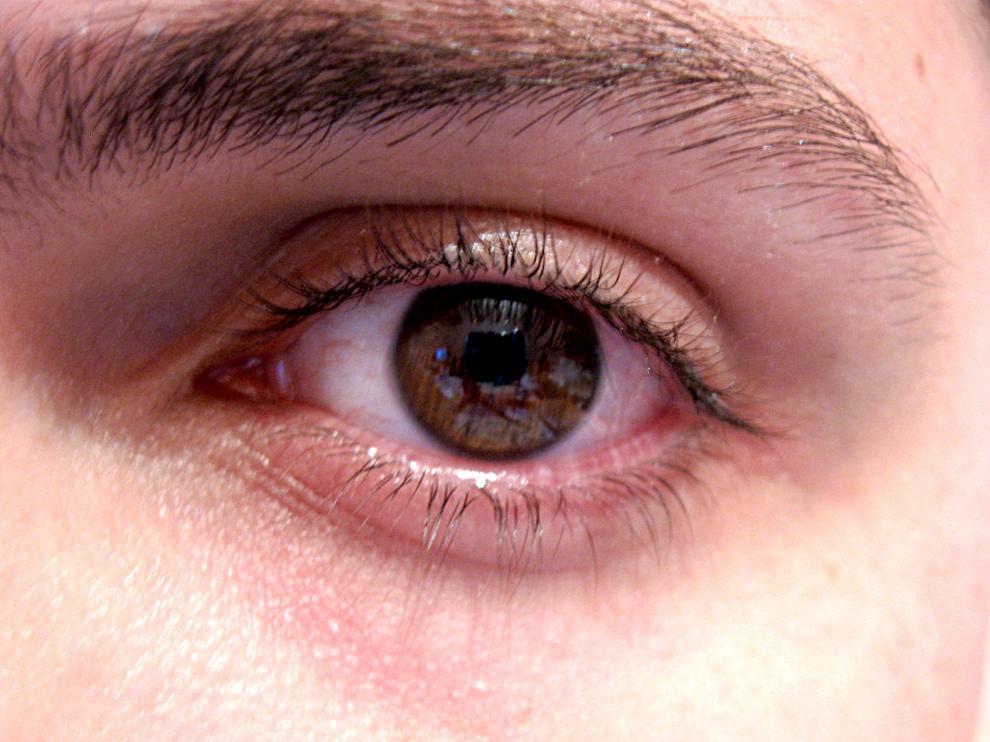 Ante la duda, es necesario visitar al oftalmólogo.