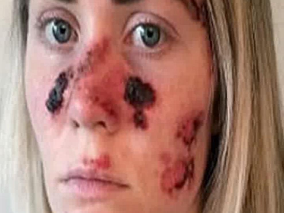 Siete respuestas sobre el cáncer de piel