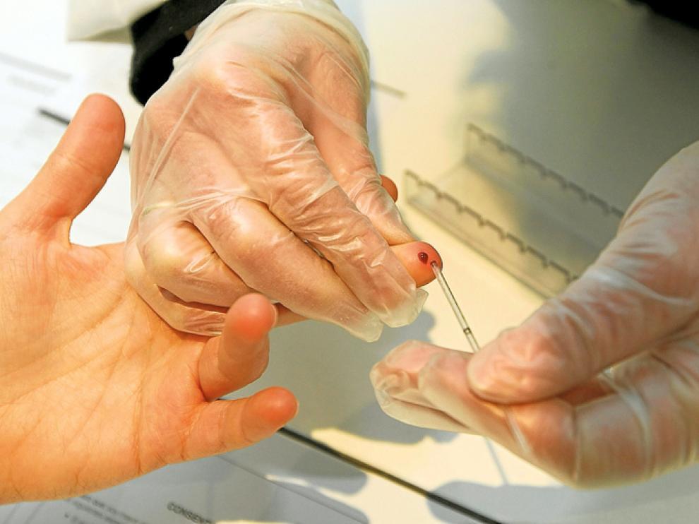 El test rápido de VIH se desarrolla en 20 minutos con una gota de sangre.