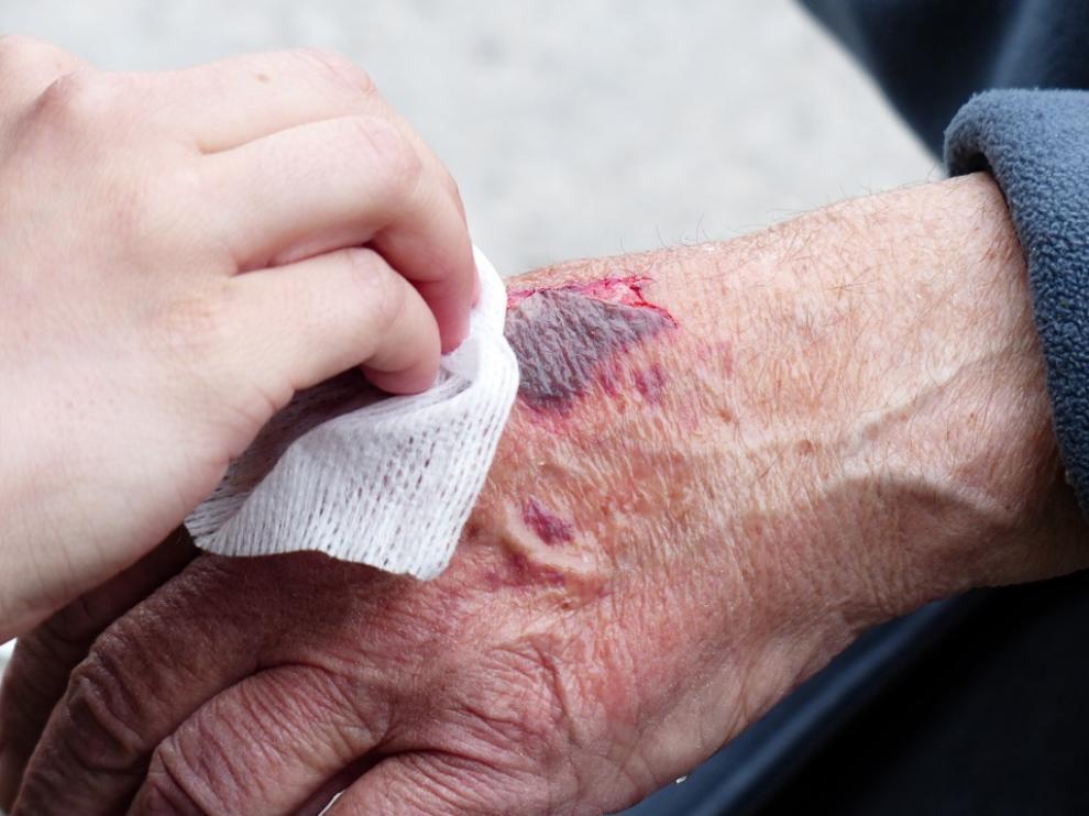Resultado de imagen para heridas cronicas