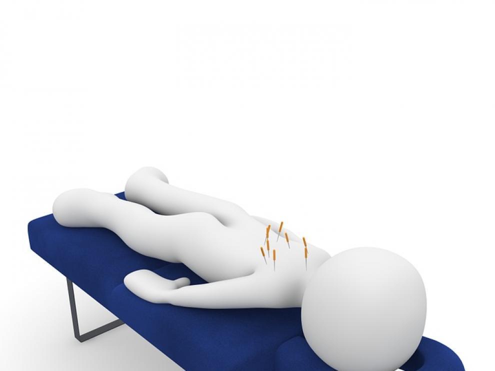 Los investigadores matizan que tanto la acupuntura real como la simulada es mejor que no hacer nada.