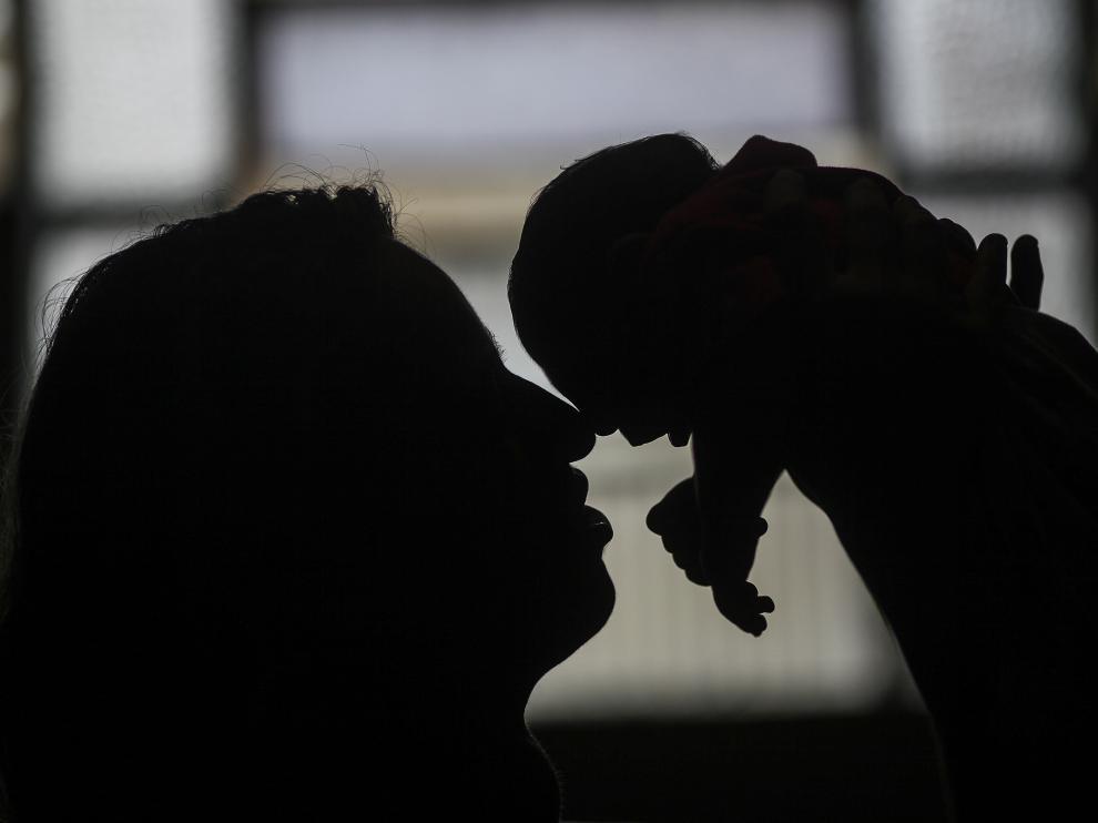 Un bebé con microcefalia, en Brasil.