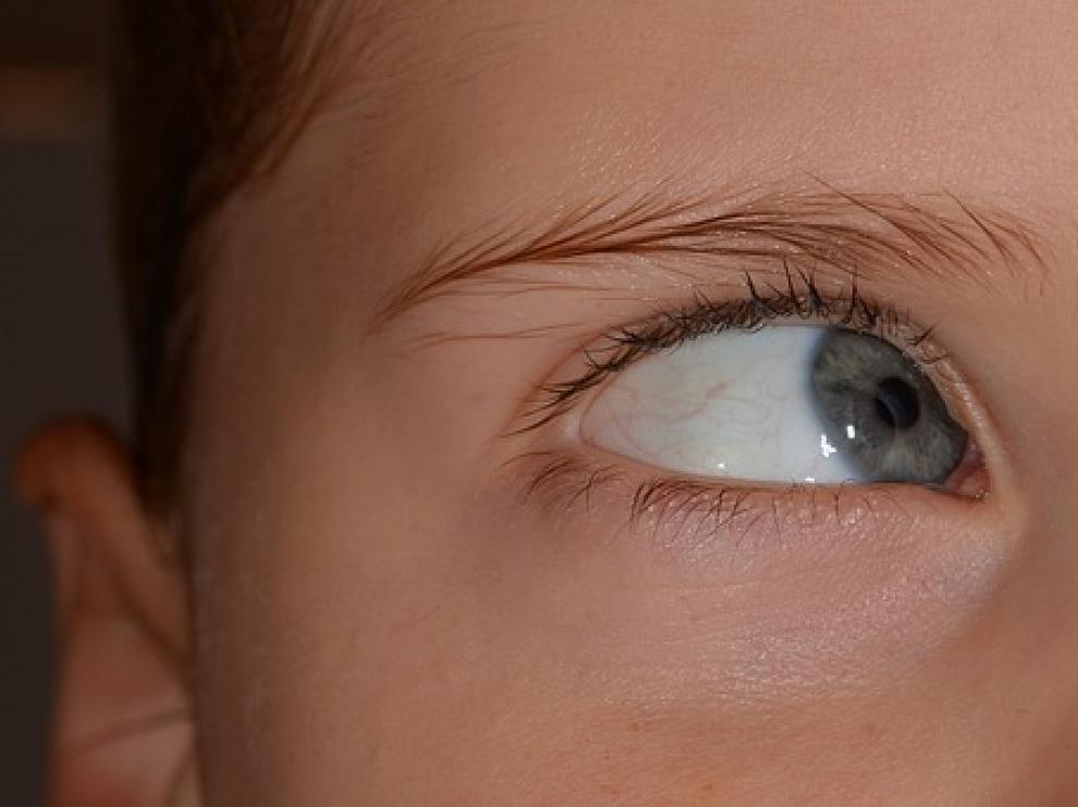 El estrabismo es un defecto visual que consiste en la pérdida de paralelismo de los ojos y es una de las complicaciones más frecuentes en niños pequeños.