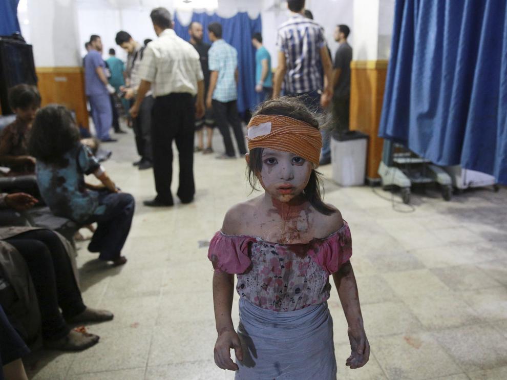 Imagen de una niña siria atendida en un hospital de Damasco (de la serie ganadora del World Press Photo).