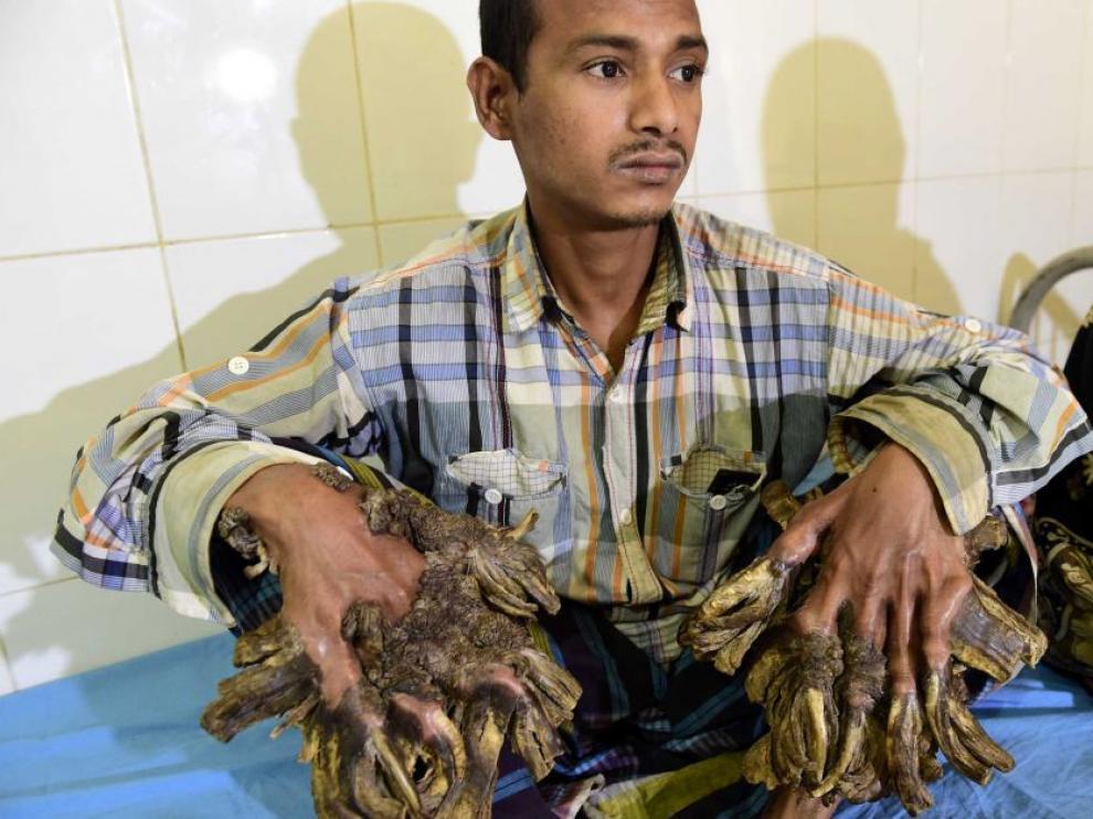 El joven Abul Bajanda padece una extraña enfermedad