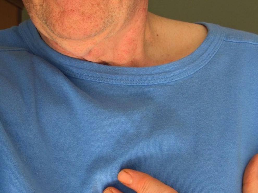 El riesgo de morir por un infarto de corazón o cerebral aumenta con la edad.