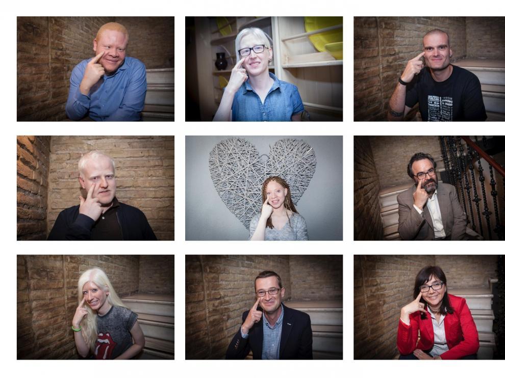 Campaña 'Mira por el albinismo', puesta en marcha por la asociación Alba.