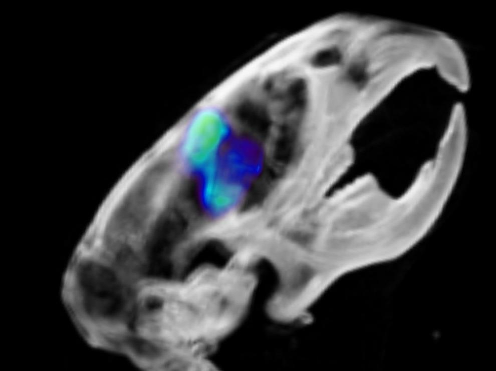 Punto sensible en el tumor cerebral