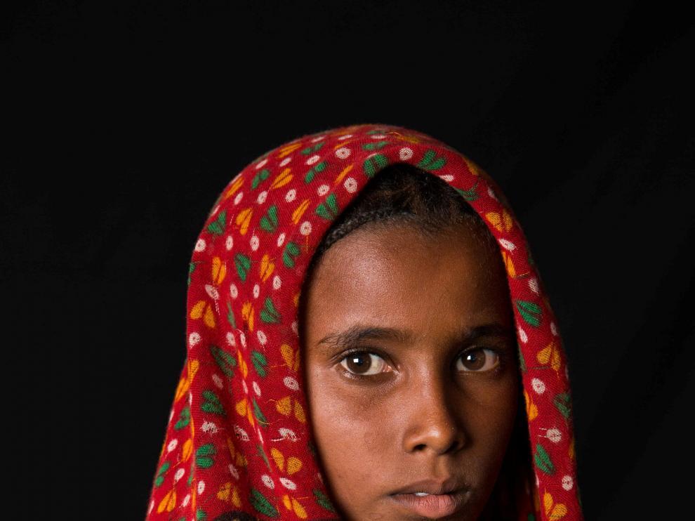 Niña refugiada de Chad, cerca de in millón de niños sufren malnutición