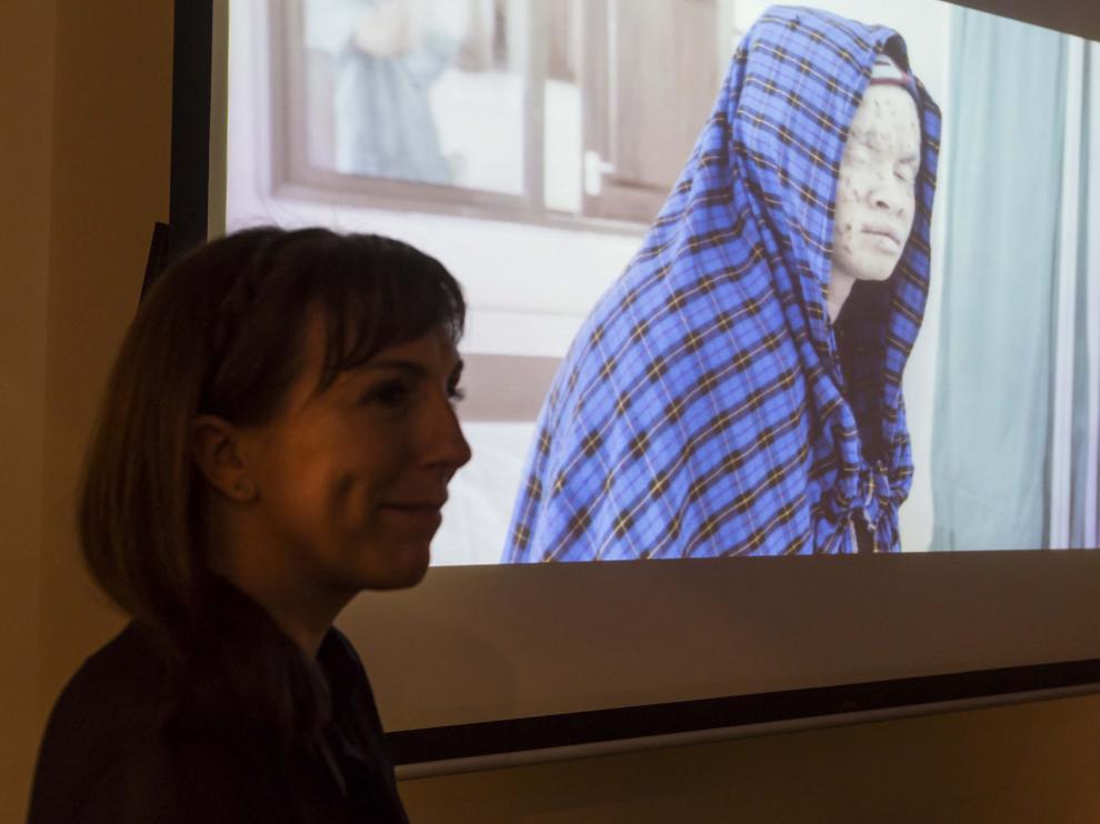 La autora del libro con la imagen de fondo de uno de los jóvenes albinos que aparecen en la publicación.